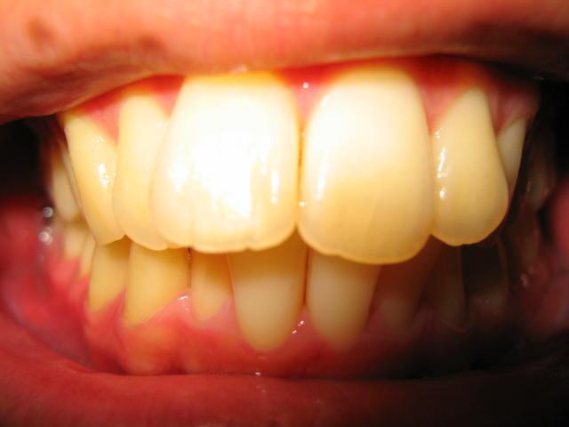 成人歯列矯正治療ブログ開始前の写真(画像サイズ大きめ)